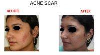 Acne-Scar-2