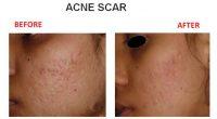 Acne-Scar-4