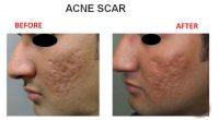 Acne-Scar-8