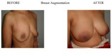 Breast Augmentation Treatment