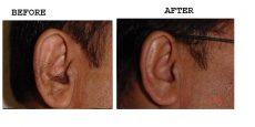Ear-1