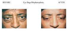 Eye-Bags-Blepharoplasty-1