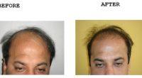 Hair-Transplant-3