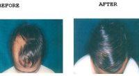 Hair-Transplant-5