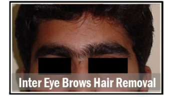 Inter-eye-brows-hair-removal