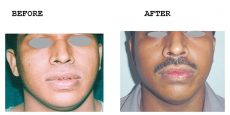 Lip-Reduction-Thick-Thin