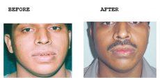 Lip-Reduction-Thick-Thin