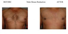 Male-Breast-Reduction-1