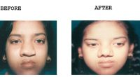 Nose-Reshaping-1