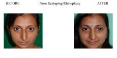 Nose-Reshaping-Rhinoplasty-1
