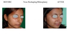 Nose-Reshaping-Rhinoplasty-2