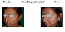 Nose-Reshaping-Rhinoplasty-3