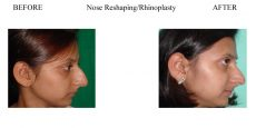 Nose-Reshaping-Rhinoplasty-4