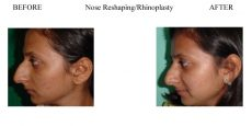 Nose-Reshaping-Rhinoplasty-5