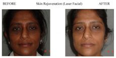 Skin-Rejuvenation-1