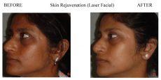 Skin-Rejuvenation-2