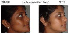 Skin-Rejuvenation-3
