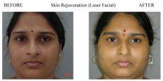 Skin-Rejuvenation-4