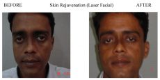 Skin-Rejuvenation-7