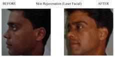 Skin-Rejuvenation-8