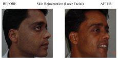 Skin-Rejuvenation-9