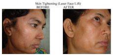 Skin-Tightening-2