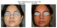 Skin-Tightening-4