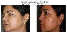 Skin-Tightening-6