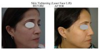 Skin-Tightening-8
