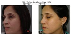 Skin-Tightening-9