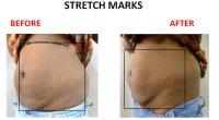 Stretch-Marks-11