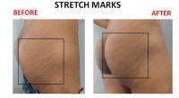 Stretch-Marks-7