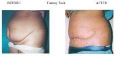 Tummy-Tuck-12