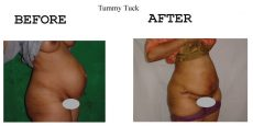 Tummy-Tuck-21