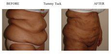 Tummy-Tuck-3