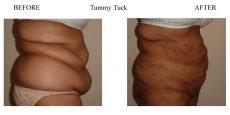 Tummy-Tuck-4