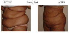 Tummy-Tuck-5