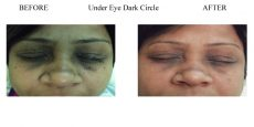 Under-Eye-Dark-Circles-3