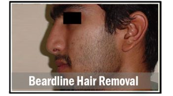 beardline-hair-removal