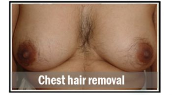 chest-hair-removal
