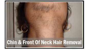 chin-&-front-of-neck-hair-removal
