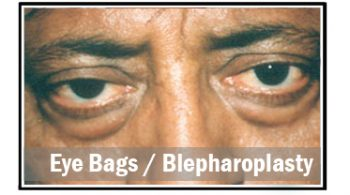 eye-bags-blepharoplasty