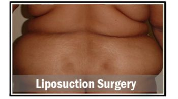 liposuction-surgery