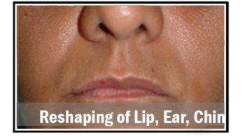 reshaping-of-lip-ear-chin