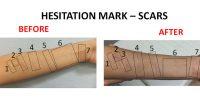 scar1
