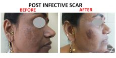 scar11