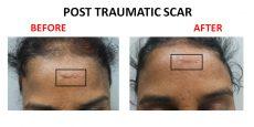 scar2