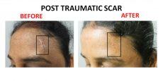 scar3