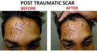 scar4