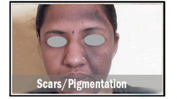 scars-pigmentation
